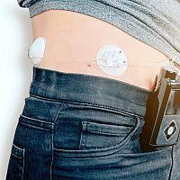 Inzulínová pumpa – zavedenie, cena. Kto má nárok na inzulínovú pumpu, prepláca ju poisťovňa?