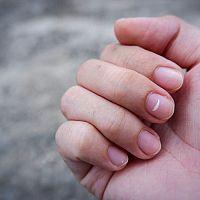 Biele škvrny na nechtoch u detí, dospelých a v tehotenstve. Príčiny a liečba