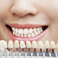 Najlepšie domáce účinné bielenie zubov? Peroxidom nie, Sódu bikarbónu chvália recenzie