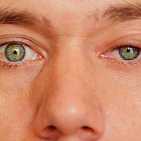 Jačmeň na oku – príčina, prenos a liečba. Masť je spôsob, ako sa ho zbaviť