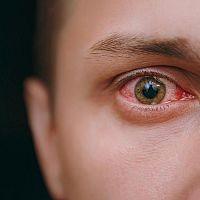 Prasknuté cievky v oku – červené žilky zaliate krvou