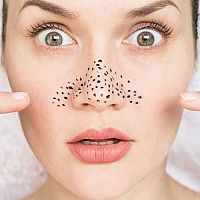 Ako sa zbaviť čiernych bodiek na nose?
