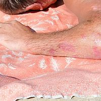 Liečba psoriázy - dovolenkujte pri Mŕtvom mori aj v kúpeľoch