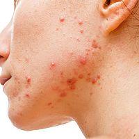 Ako sa zbaviť akné? Čo pomáha? Prírodná liečba!