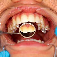 Čo na zubný kameň? Pasta, škrabka aj dentálne špáradlá