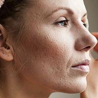 Jazvy po akné – ako sa ich zbaviť. Krém, laser alebo domáce recepty?