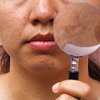 Krémy na pigmentové škvrny na tvári ako účinná liečba. Pomáha aj citrón.