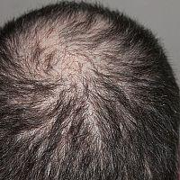 Ako zastaviť vypadávanie vlasov? Ako tomu zabrániť?