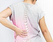 Osteoporóza – prevencia a liečba. Rady, ako zvýšiť hustotu kostí a doplniť vápnik
