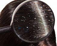 Najlepší šampón proti lupinám z lekárne? Poradí test a recenzie