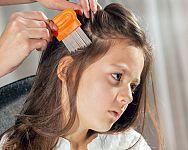 Ako sa zbaviť vší vo vlasoch? Ocot aj šampóny na rýchle odstránenie problému