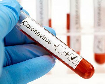 Testy na koronavírus – aké sú možnosti? Laboratórne testovanie, klinické či domáce rýchlotesty