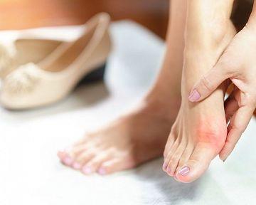 Otlak na prste na nohe od topánok, pod nechtom – liečba, ako im predchádzať