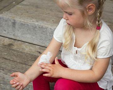 Čo pomáha na zapareniny u detí či dospelých?
