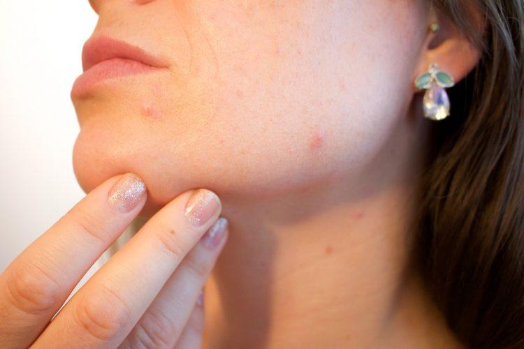 Akné - prejavy. ako liečiť