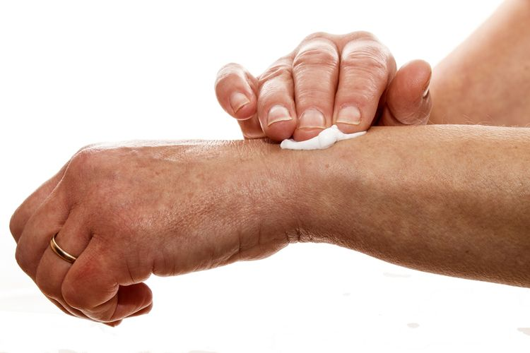 Aplikácia krému Dolgit na boľavé kĺby