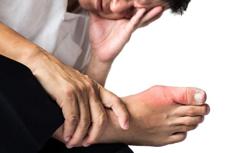 Zvýšená kyselina močová v kĺboch, DNA