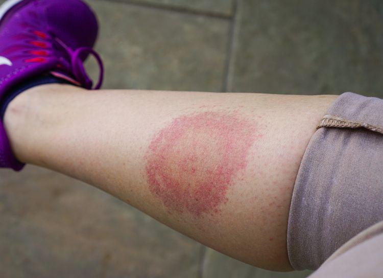 Červená škvrna ako symptóm Lymskej boreliózy