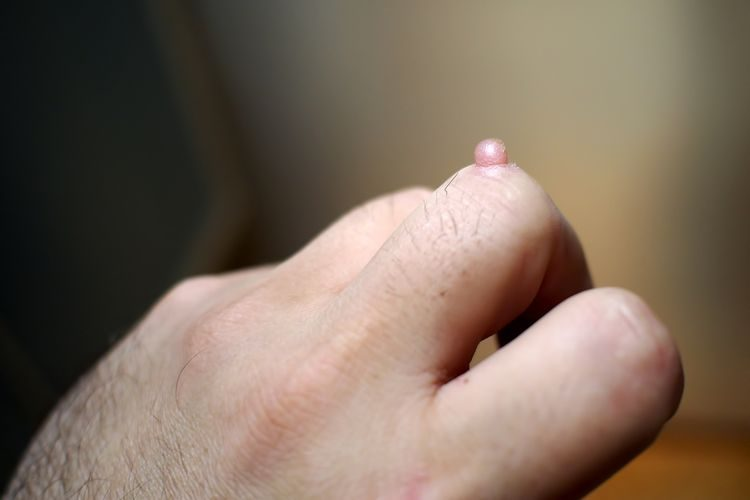 Veľká bradavica na prste