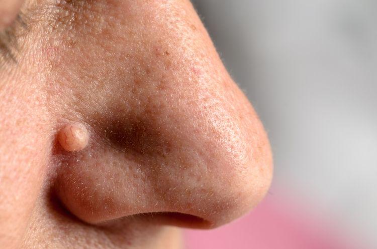 Bradavica na tvári pri nose