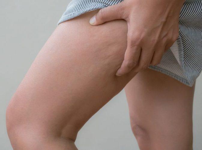 Celulitída na stehnách