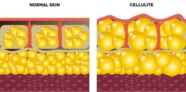 Pokožka s celulitídou a bez nej