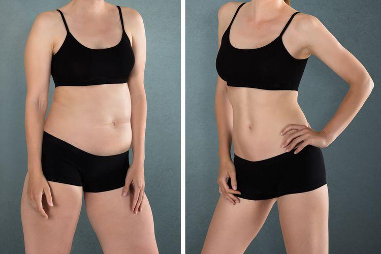 Ako schudnúť z brucha a celého tela?