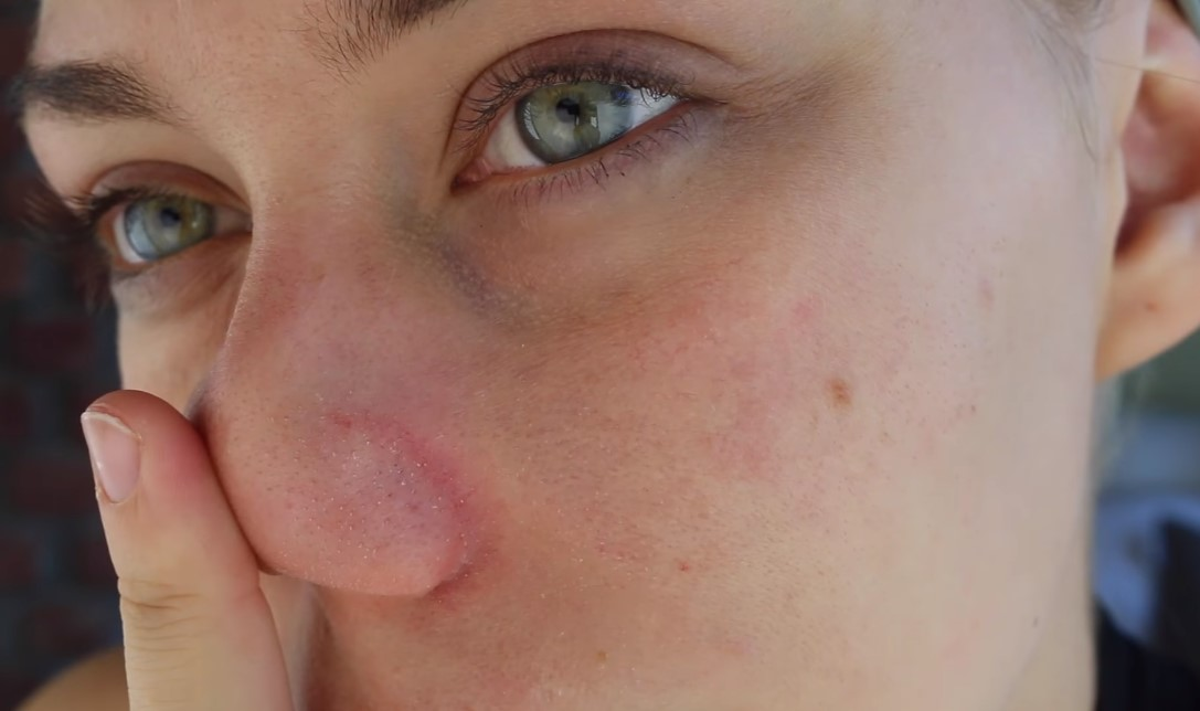 Biele a čierne bodky na nose
