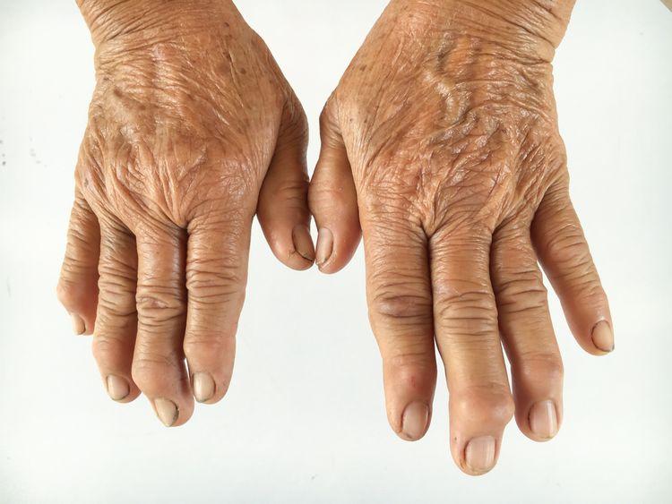 Deformovanie rúk kvôli reume
