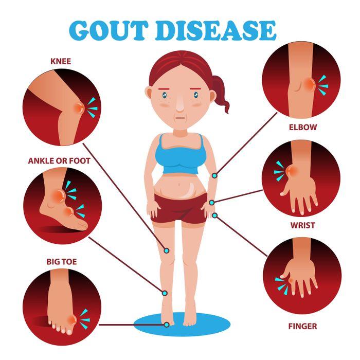 Choroba Dna postihuje kĺby palca na nohe, zápästia aj členky