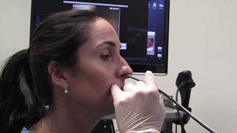 Transnazálna gastroskopia