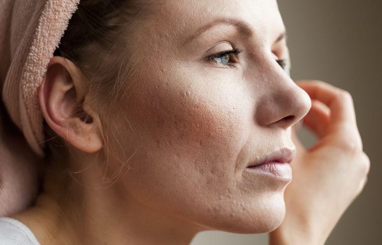 Jazvy po akné - ako sa ich zbaviť?