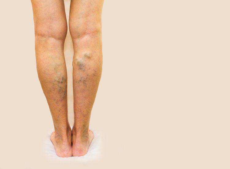 Kŕčové žily na nohách