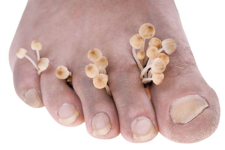Plesňové ochorenie na nohách