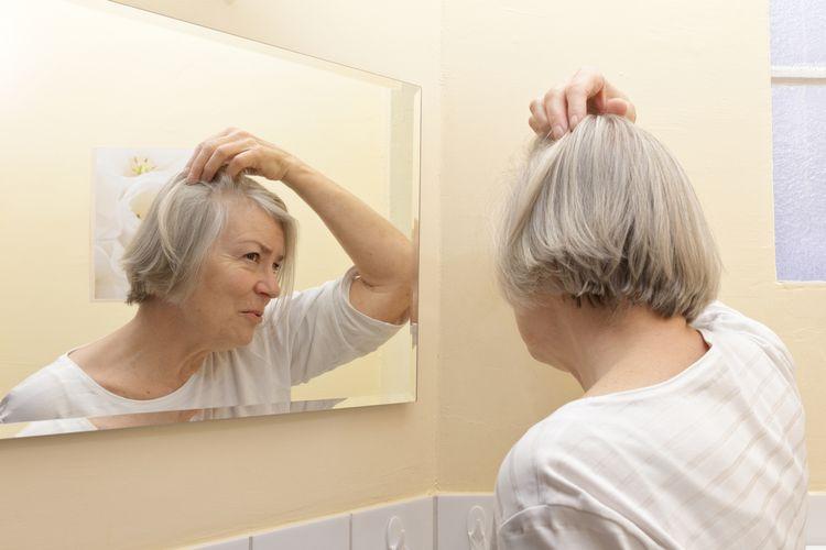 Vypadávanie vlasov počas menopauzy