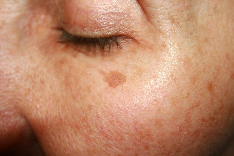 Výrazné pigmentové škvrny na tvári staršej ženy