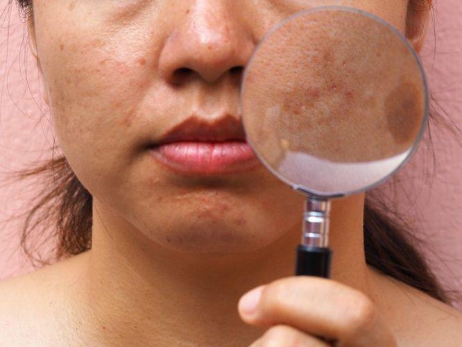 Pigmentové škvrny na tvári