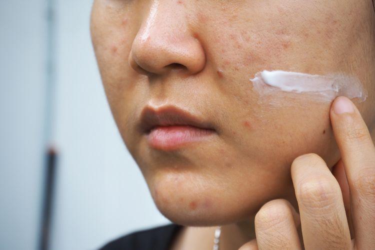Krémovanie po chemickom peelingu