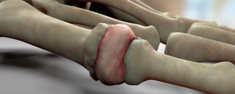 Psoriasis arthritis u staršieho človeka