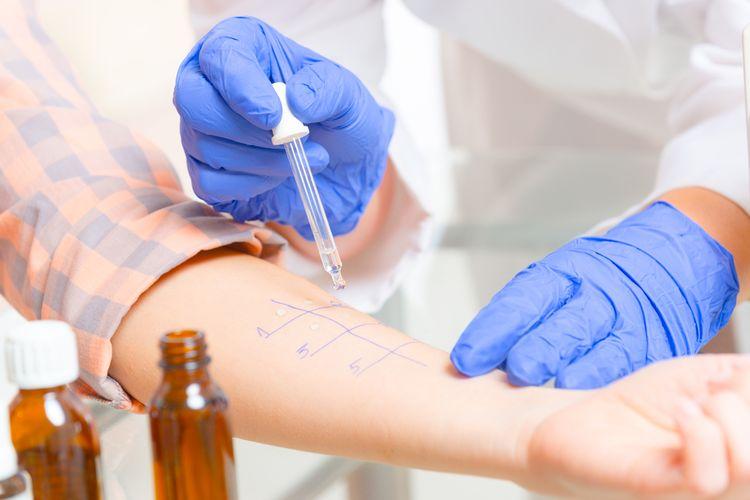 Vyšetrenie alergie u lekára