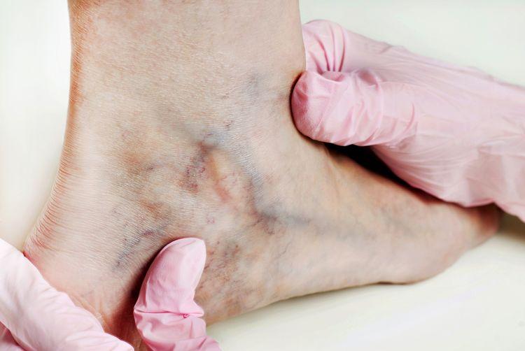 Vyšetrenie kŕčových žíl u angiológa